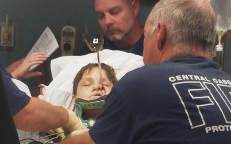 10-Jähriger im Gesicht von Grillspieß durchbohrt