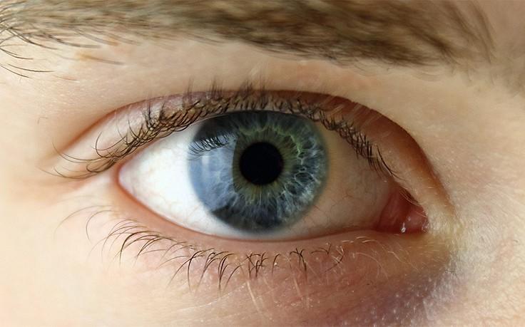 Ärzte warnen vor aggressiver Augengrippe